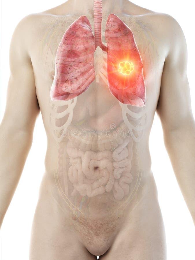 ?quipe la tumeur de poumon illustration libre de droits