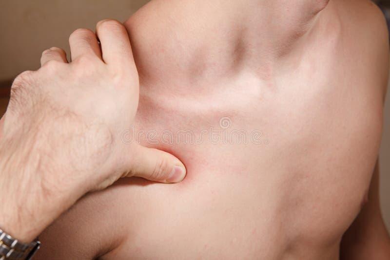 Quiropráctica, osteopatía, terapia manual, acupressure fotografía de archivo libre de regalías