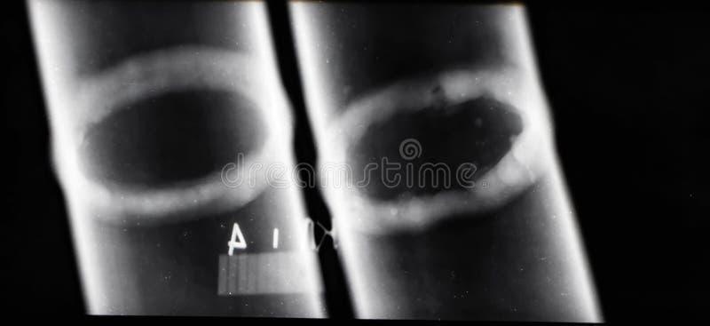 Röntgenstrahlbilder von Schweißungen von den Rohrleitungen, zum von defekten Bereichen zu identifizieren lizenzfreie stockbilder