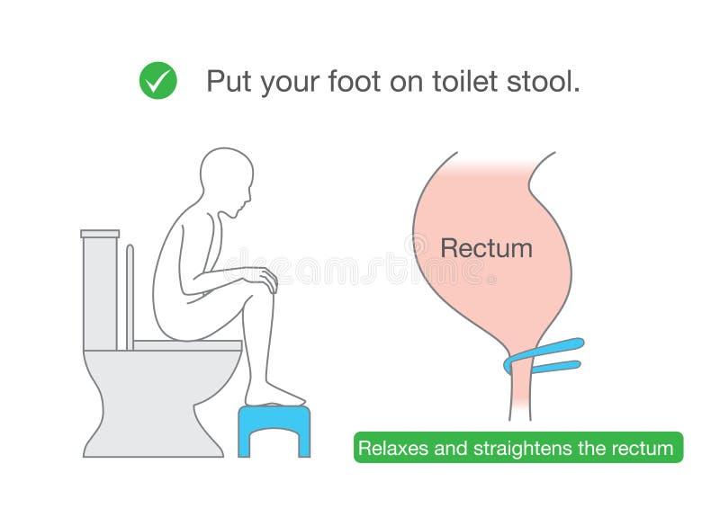 Rätar ut ändtarmen, medan sitta på toalett med små bänkar royaltyfri illustrationer