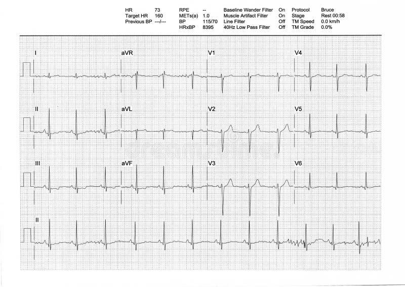 Résultat d'EKG ou d'ECG d'un essai de fatigue de tapis roulant photographie stock
