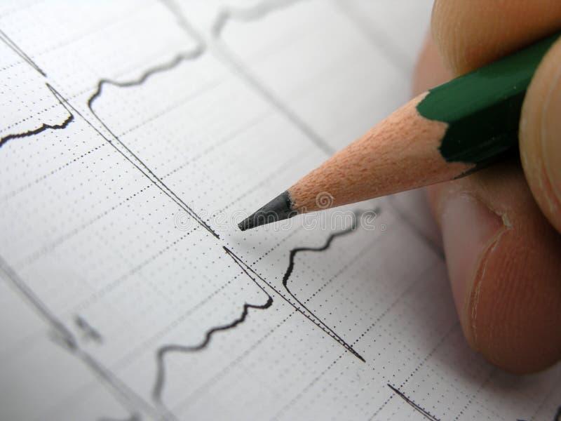 Résultats d'essai d'EKG photos libres de droits