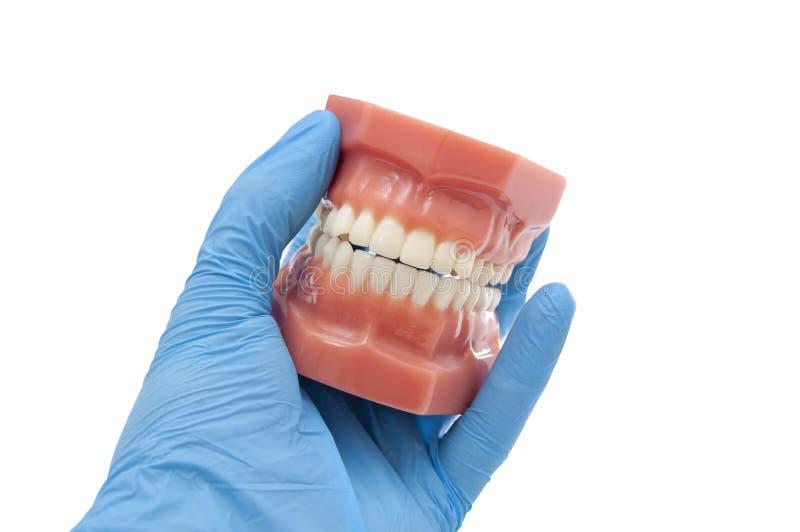 Résultats de traitement orthodontiques d'exposition de dentiste images stock