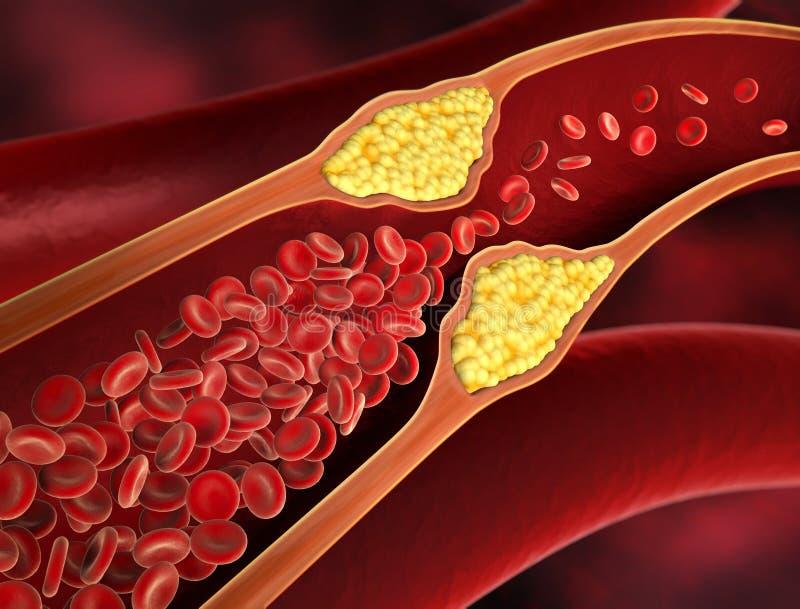 Rétrécissement d'un vaisseau sanguin - illustration 3d illustration libre de droits