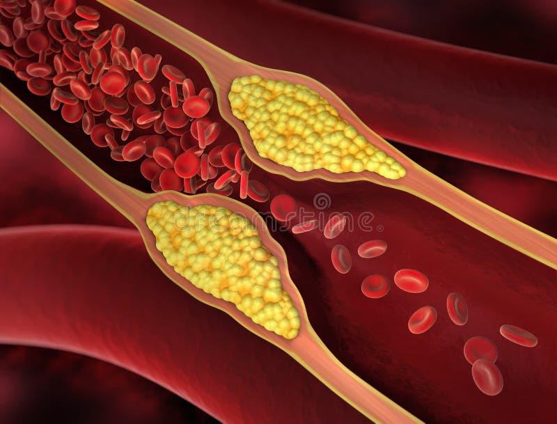 Rétrécissement d'un vaisseau sanguin - illustration 3d illustration de vecteur