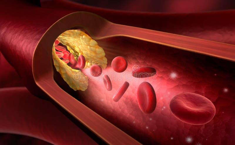 Rétrécissement d'un vaisseau sanguin - illustration 3d illustration stock