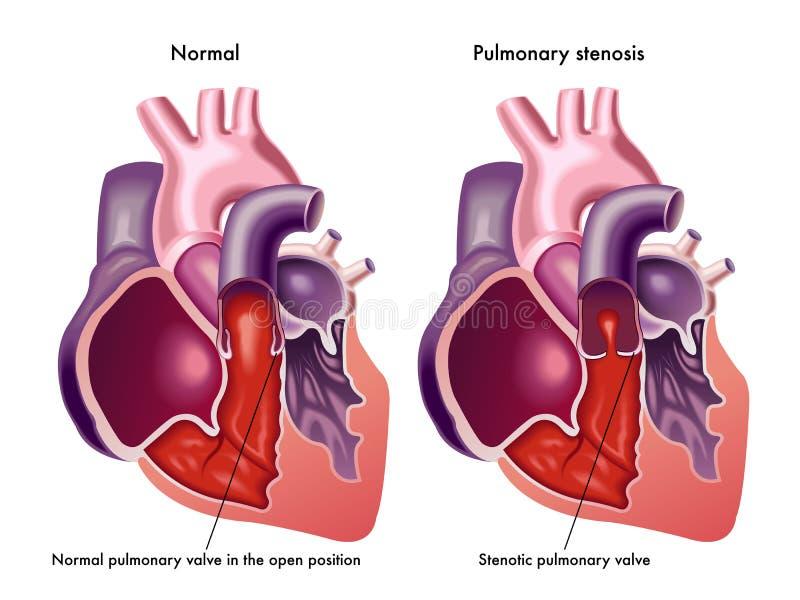 Rétrécissement pulmonaire illustration libre de droits