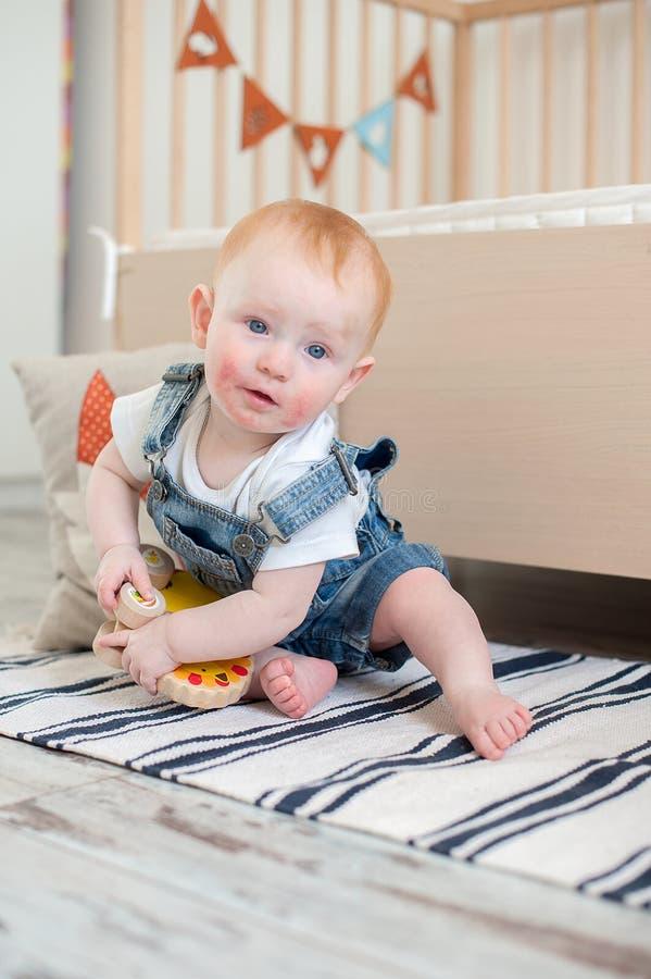 Rödhårig pojke med dermatit arkivfoto