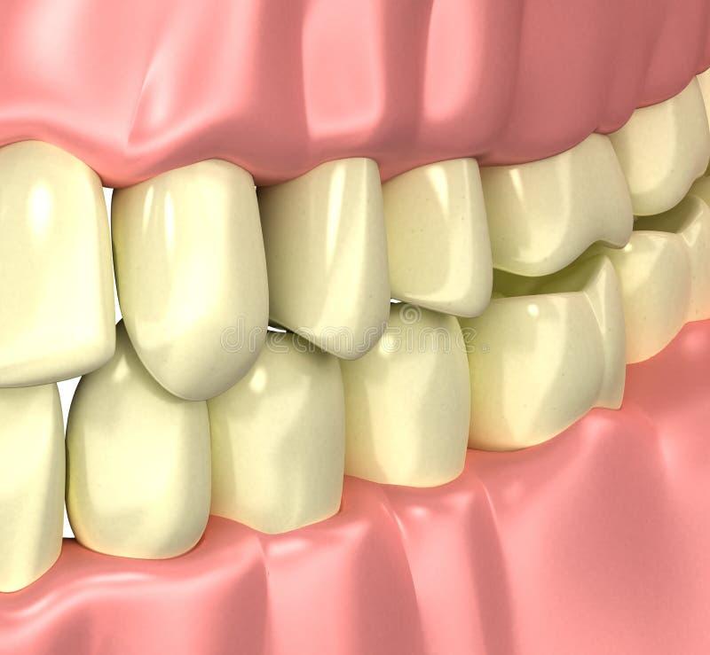 Rökare gulnar det dåliga tandbegreppet - illustrationen 3d arkivbild