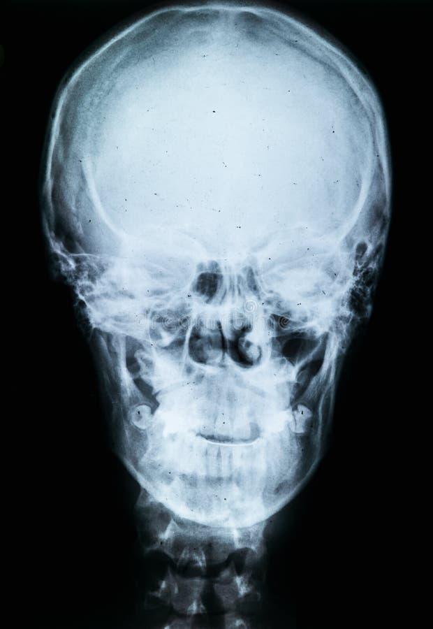 Röntga av människaskallen arkivbilder