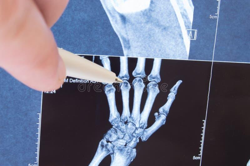 Röntga bildläsningen av handen, ben och fingerskarvar Manipulera spetsigt på små skarvar för finger, var patologi avkänns, liksom royaltyfria bilder