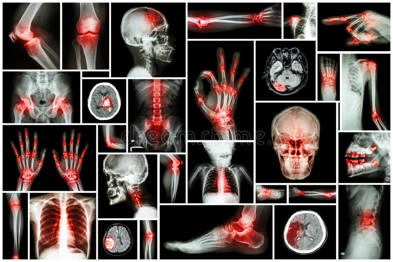 Röntga den åtskilliga delen av människan med den åtskilliga sjukdomen (slaglängd, artrit, gikt, reumatoid, hjärntumör, osteoarthr royaltyfri bild
