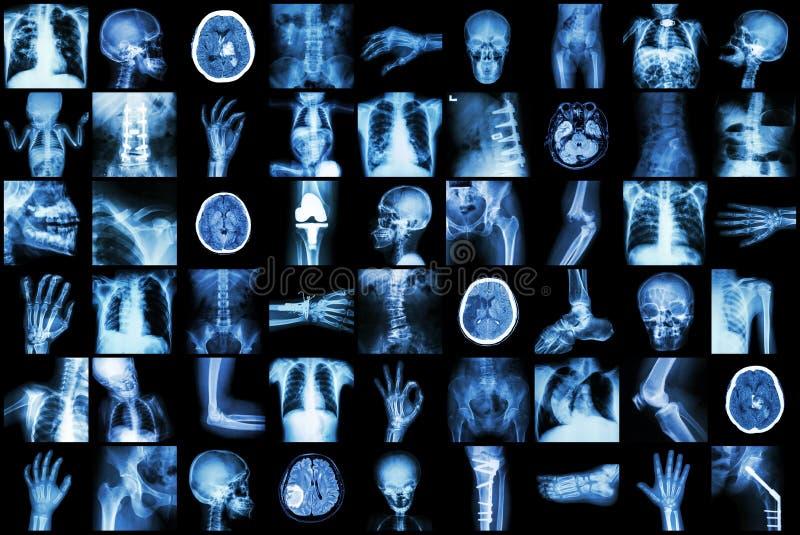 Röntga den åtskilliga delen av vuxna människan och barnet och sjukdomen (för slaglängdnjure för lung- tuberkulos tarm för brott f royaltyfri fotografi