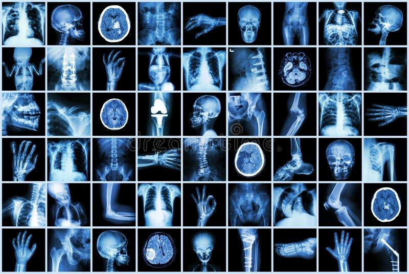 Röntga den åtskilliga delen av vuxna människan och barnet och sjukdomen (för slaglängdnjure för lung- tuberkulos tarm för brott f royaltyfria bilder