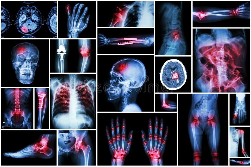 Röntga den åtskilliga sjukdomen (slaglängden (CVA), brottet, skuldraförskjutning, tarmblockeringen, den reumatoida artrit, gikten royaltyfri fotografi