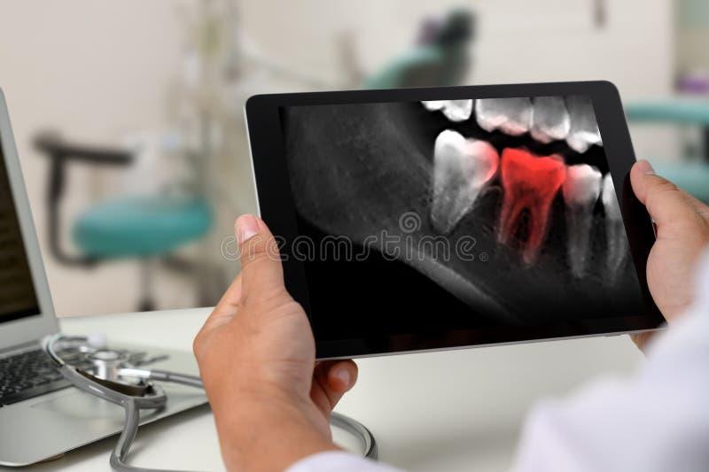 Röntgar det tand- hjälpmedlet för tandläkaren till tandröntgenstrålearbete som ser tänder, på datoren royaltyfri fotografi