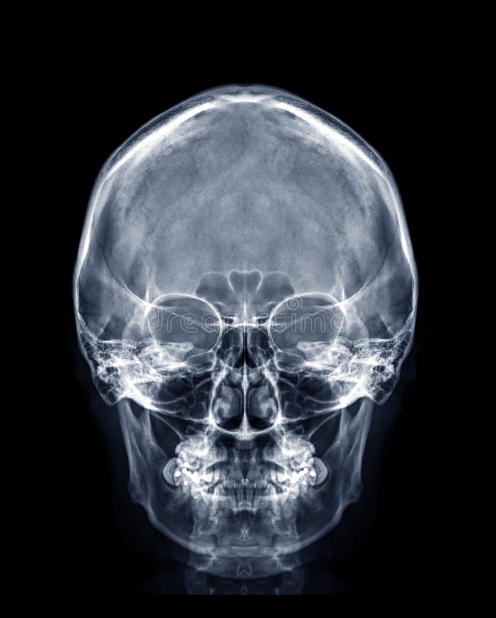 Röntgen-Röntgenbild des menschlichen Schädels AP-Ansicht oder Vorderansicht lizenzfreies stockbild