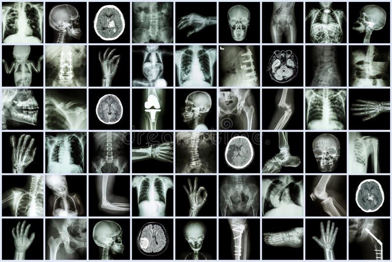 Röntgen Sie Mehrfach des Erwachsenen und des Kindes und der Krankheit (Tuberkulose der atmungsorgane Anschlagnierensteinarthrose- lizenzfreie stockfotografie