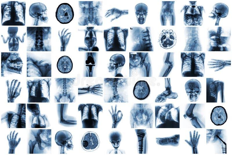 Röntgen Sie Mehrfach des Menschen und viel Beschwerden und Krankheit lizenzfreies stockbild