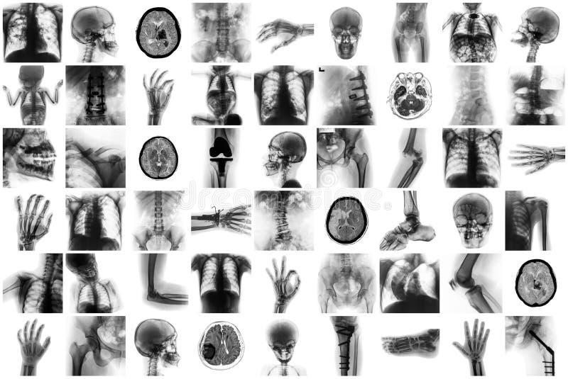 Röntgen Sie Mehrfach des Menschen und viel Beschwerden und Krankheit lizenzfreies stockfoto