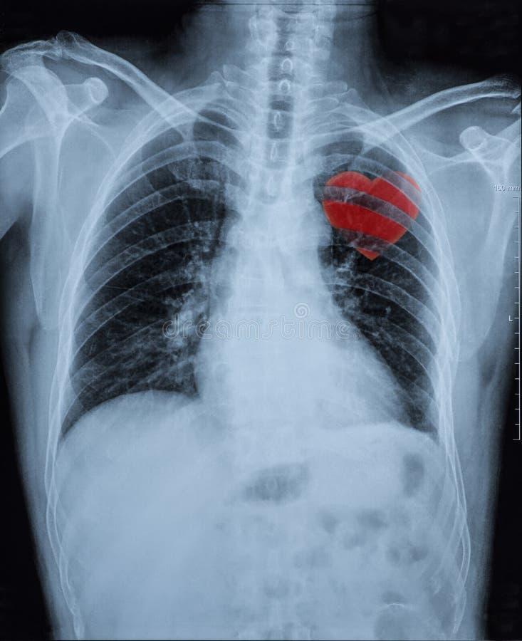 Röntgenbild stockbild