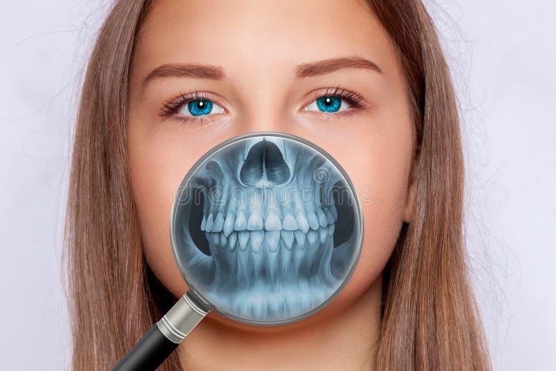 Röntgenbild av framsidan, tandläkekonst, kvinna royaltyfria foton