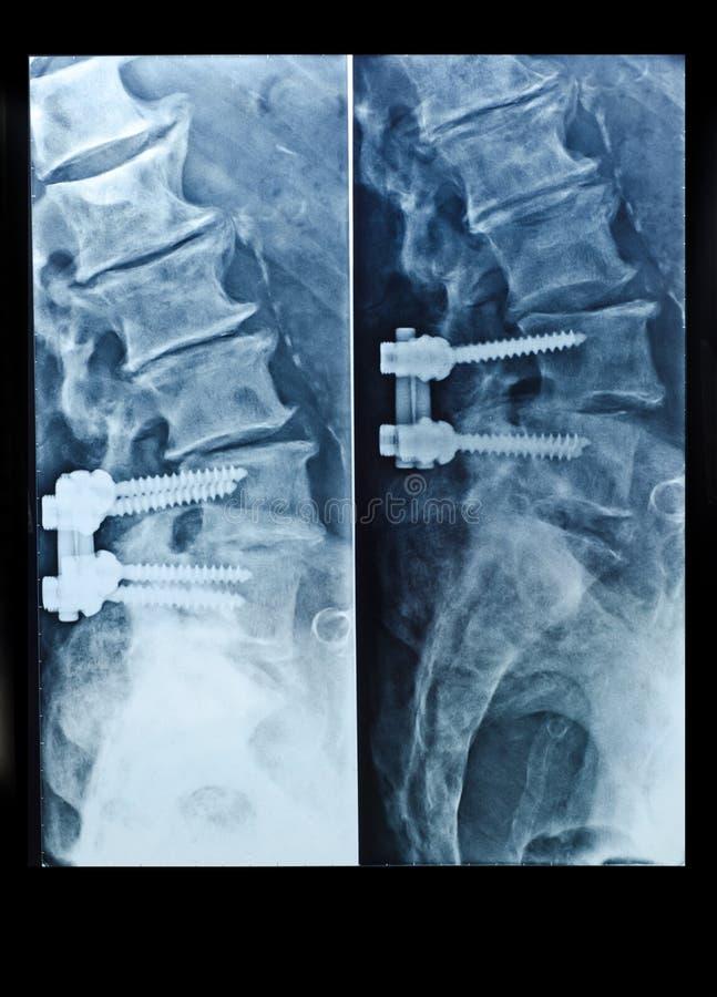 Röntgenbild Der Wirbelsäule Mit Schrauben Nach Chirurgie Stockfoto ...