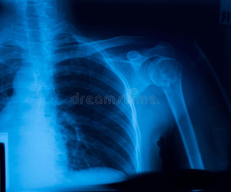 Röntgenfilm stockbild