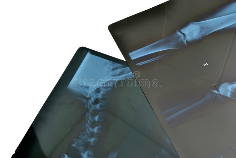 Röntgenfoto's stock afbeeldingen
