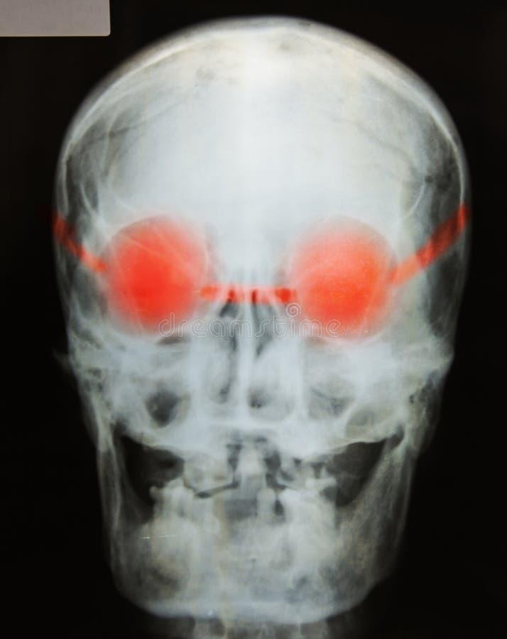 Röntgenfoto van de schedel royalty-vrije stock fotografie