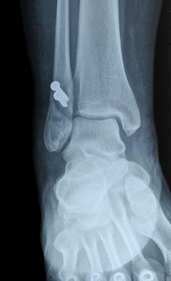 Röntgenfoto van menselijk breukfibula been royalty-vrije stock fotografie