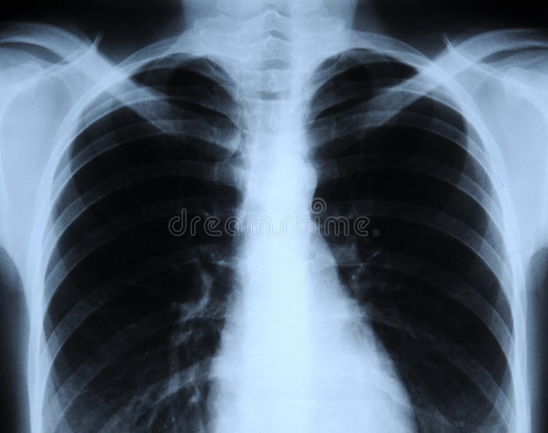Röntgenfoto van menselijke borst stock fotografie