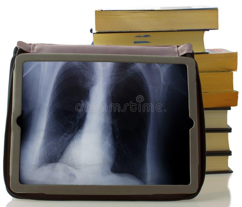 Röntgenfotografering royaltyfria bilder