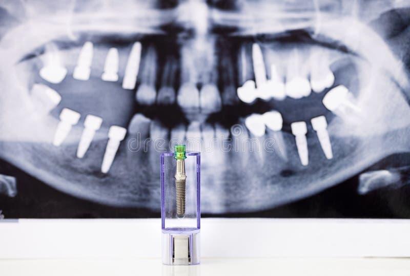 Röntgenfotografering för tand- implantat och tand arkivfoton