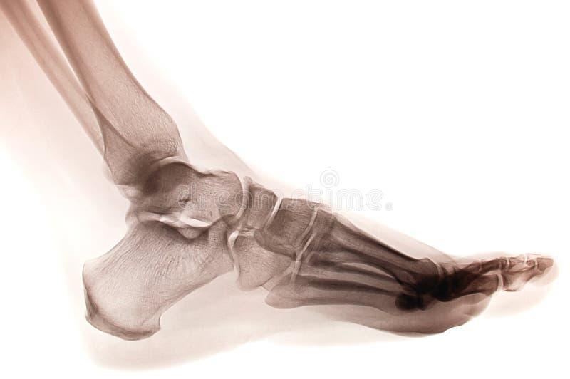 röntgenstråle