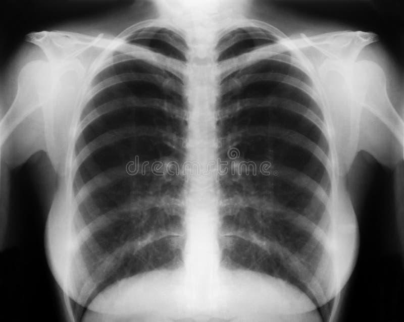 Röntgenstråle arkivfoton