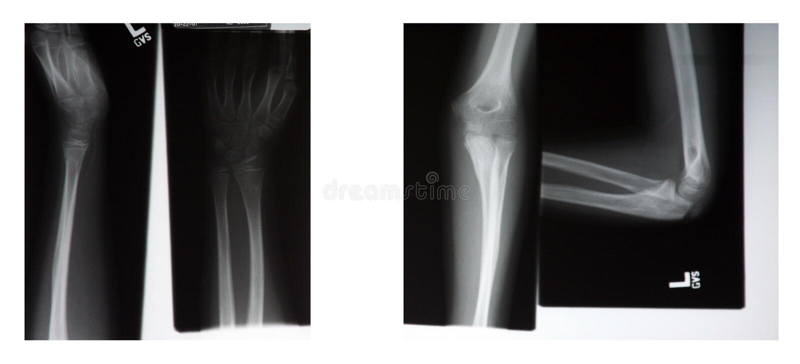 Download Röntgenstråle arkivfoto. Bild av kontor, diagnos, undersökning - 3546512