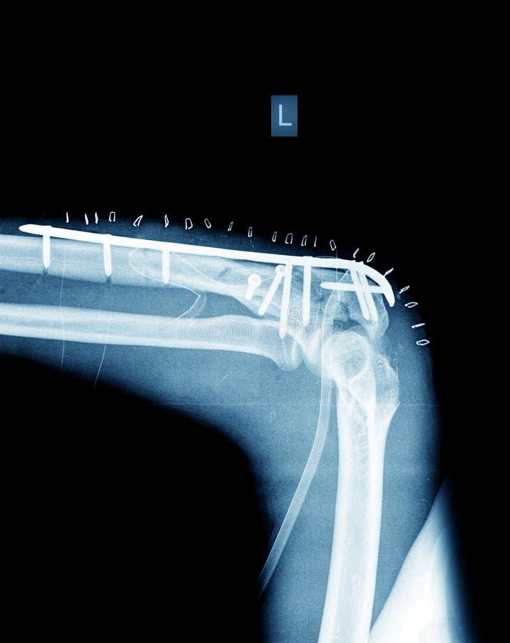 Röntgenstråle av den brutna armen med skruven arkivbild