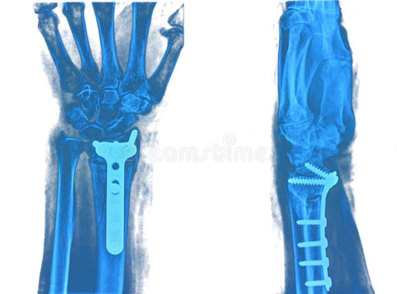 Röntgenstråle av handen royaltyfria foton
