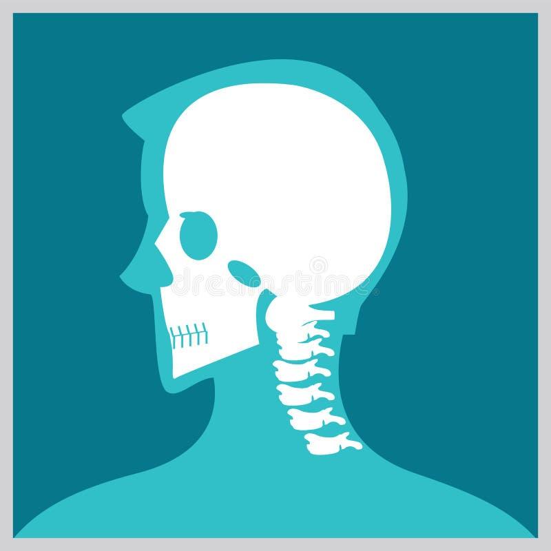 Röntgenstråle av huvudet och halsen royaltyfri illustrationer