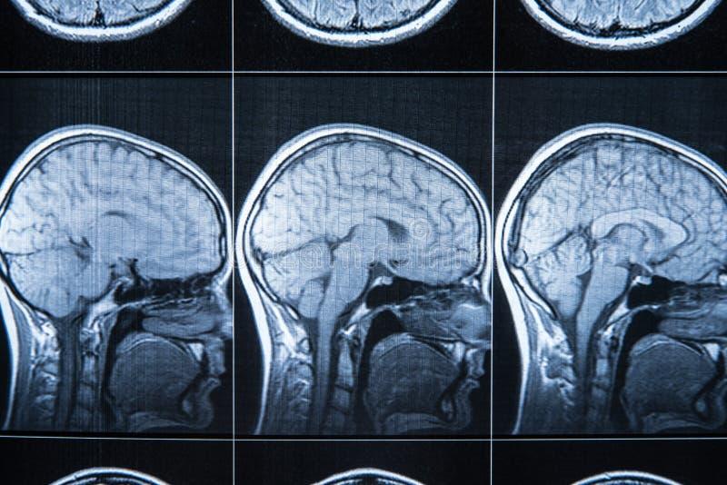 Röntgenstråle av huvudet och hjärnan, MRI arkivbild