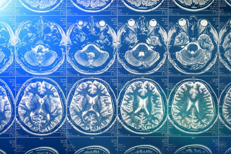 Röntgenstråle Mri för hjärnbildläsning eller kopiering för magnetisk resonans av det mänskliga huvudet, neurologibegrepp arkivfoton