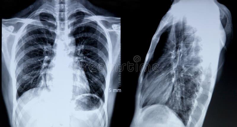 Röntgenstrålebild av bröstkorgen arkivfoto