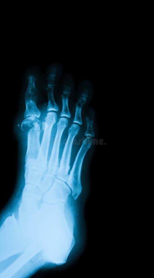 Röntgenstrålebild av den diabetiska foten royaltyfri fotografi