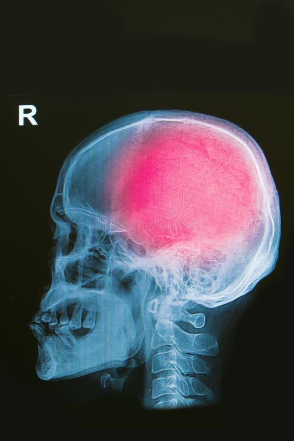 Röntgenstrålebild av den head skadan för mänsklig skalleshow royaltyfria foton