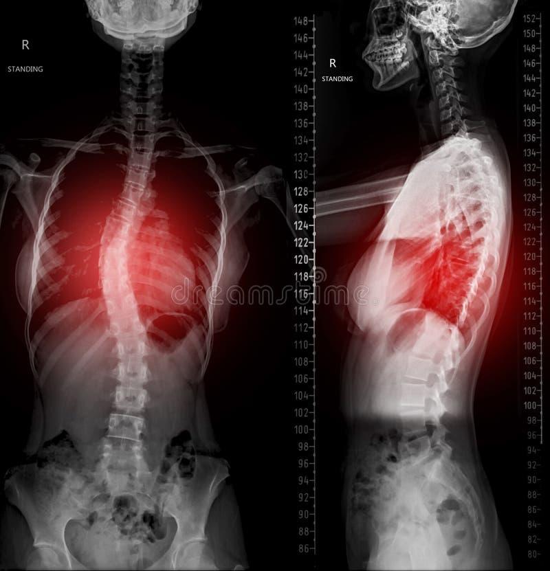 Röntgenstrålebild av den hela ryggen Scanography AP och sidosikt royaltyfri illustrationer