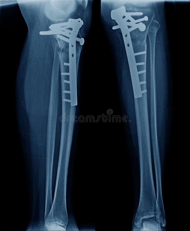 Röntgenstrålebild av fixering för ben för tibia för benshow royaltyfri foto