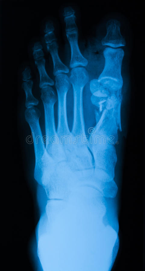 Röntgenstrålebild av fotbrottet, AP-sikt fotografering för bildbyråer