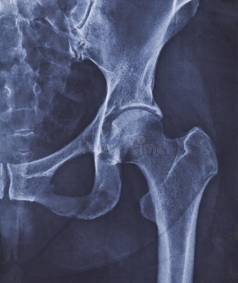 Röntgenstrålebild av höftleden med tecken av coxarthrosisen royaltyfria foton