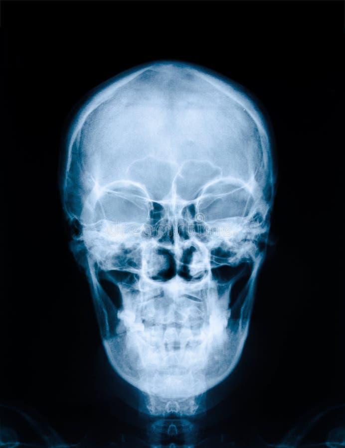 Röntgenstrålebild av skallen arkivfoto